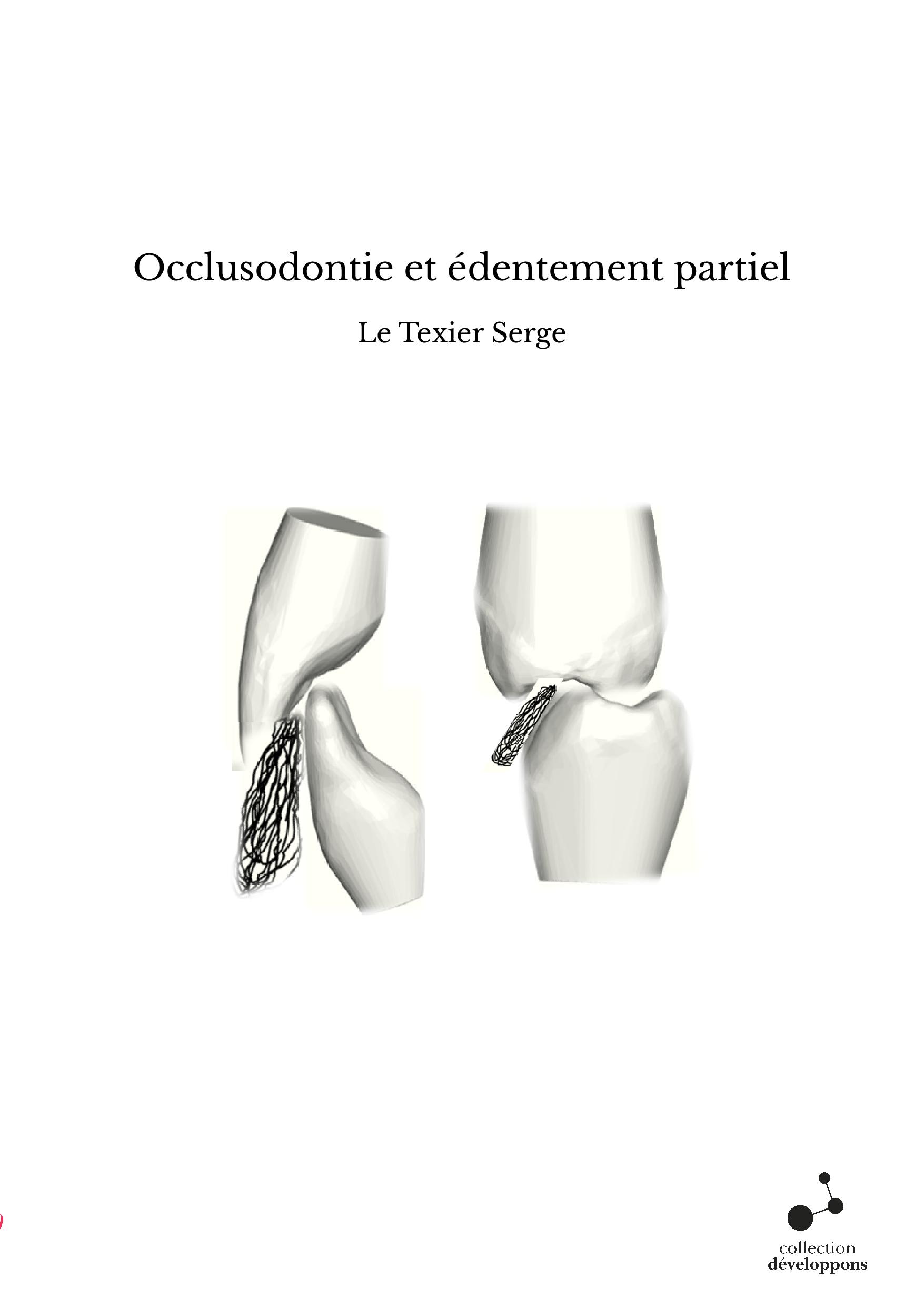 Occlusodontie et édentement partiel