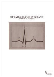 MINI ATLAS DE L'ECG EN 62 DIAPOS